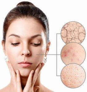 Methods to Examine your Skin Type
