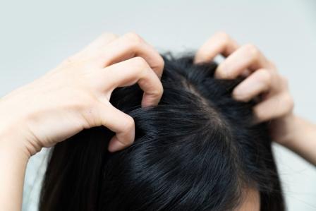 Moisturizes dry scalp